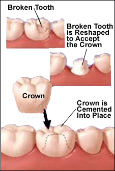 Dental Crowns in Mississauga