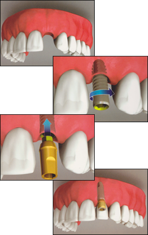 Dixie Dental Implants in Mississauga